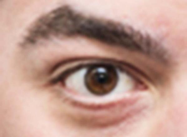 Entenda o que é o Glaucoma e saiba como tratar a doença - Foto ilustrativa